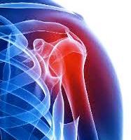 Замена плечевого сустава после дтп почему хрустят суставы коленей