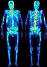 Остеосцинтиграфия лечение суставов при опухолях дисплазия тазобедренных суставов обнаружена после года